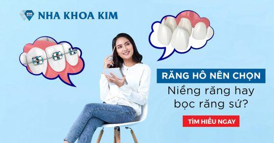 Răng hô nên chọn niềng răng hay bọc răng sứ?